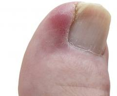 ingrown toenail Yosemite