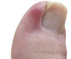 ingrown toenail treatment blue mountains