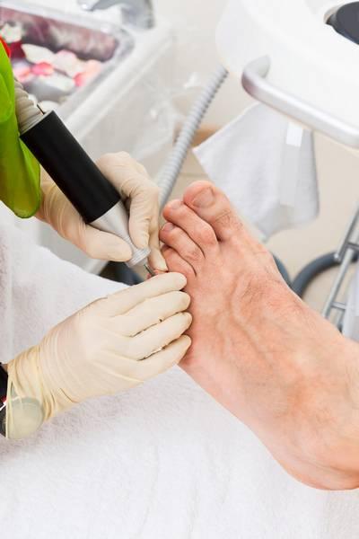 toe nail surgery katoomba